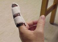 Как снять опухоль из пальца при ударе?