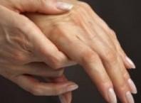 Как лечить онемение пальцев рук: причины