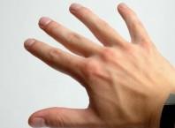 Как вылечить выбитый палец быстро?