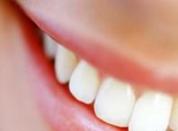 Как убрать налет из зубов с учетом требований гигиены?